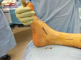 foot surgeon oc